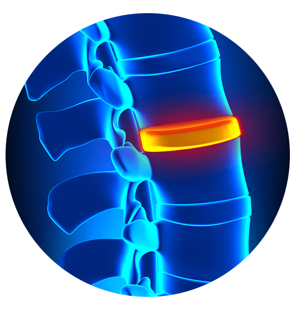 Stem Cells Back Pain Boulder CO - Front Range Regenerative Medicine
