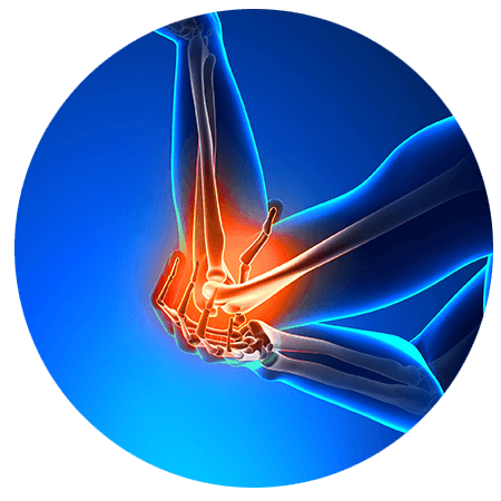 Elbow Pain Relief & Treatment Boulder, CO - Front Range Regenerative Medicine