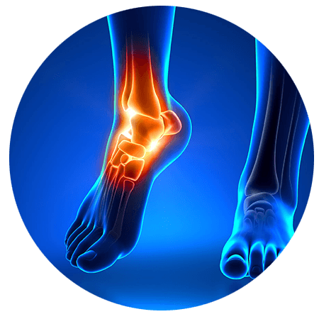 Foot and Ankle Pain Relief in Boudler Colorado - Front Range Regnerative Medicine